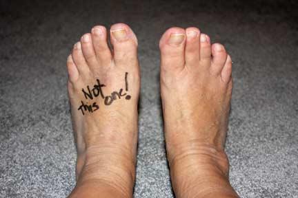 Pre-Surgery Foot
