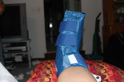 Post-Surgery Foot